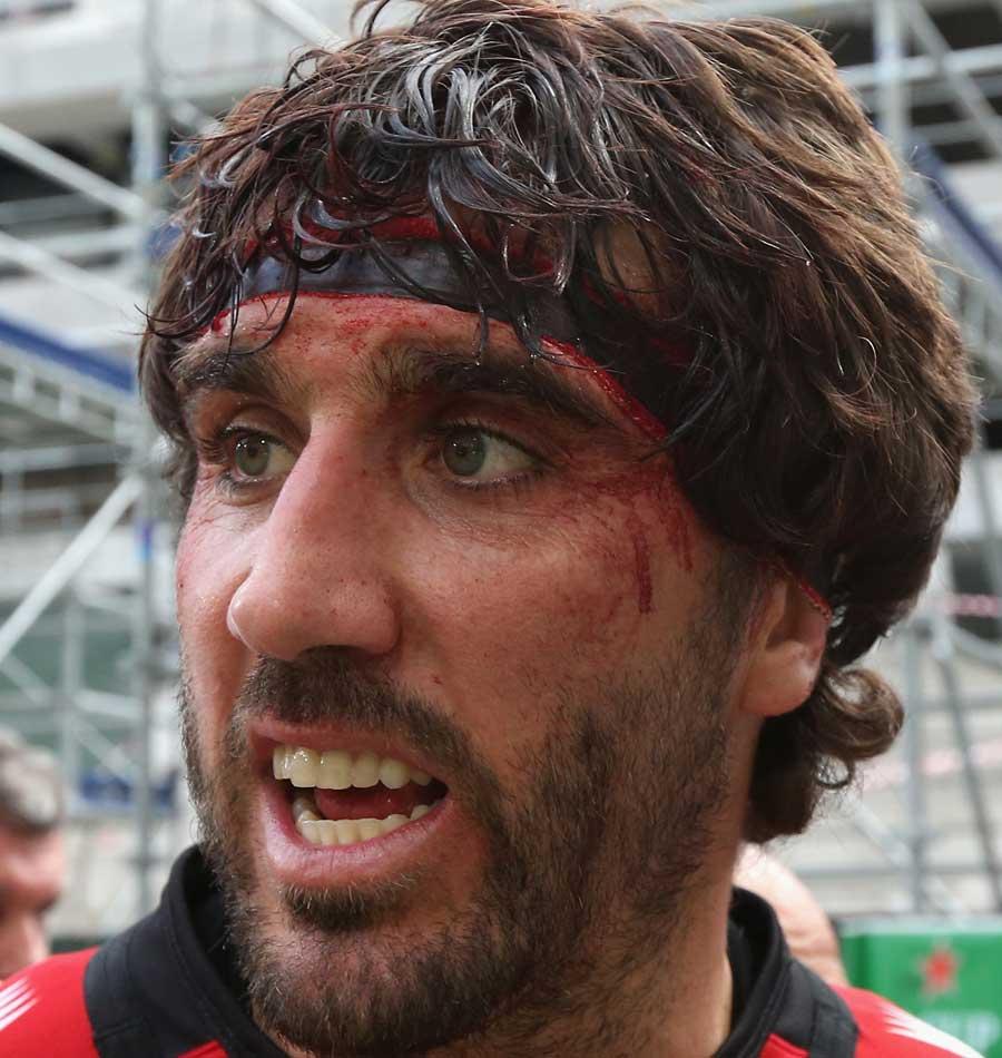 Juan Fernandez Lobbe shows off his battle scars