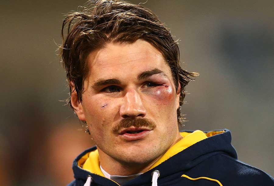 The Brumbies' Ben Mowen sports a black eye