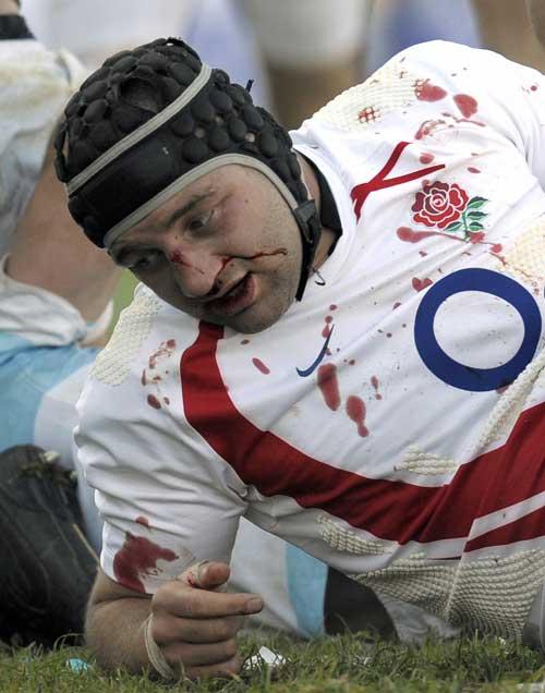 England skipper Steve Borthwick lies bleeding